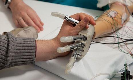 """Bionische hand met """"tast""""-ervaring"""