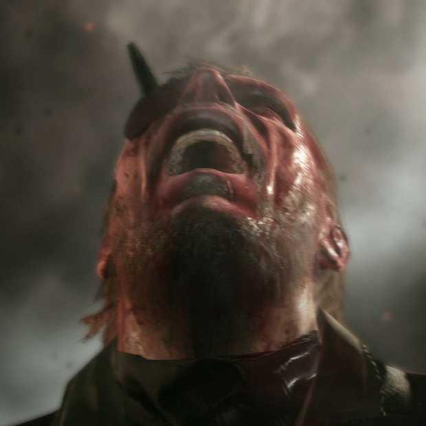 Metal Gear Solid V kent een wel hele bijzondere microtransactie