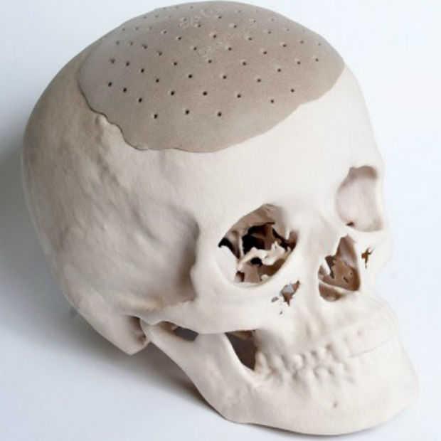 Je uiterlijk veranderen met 3D geprinte implantaten