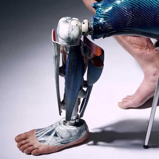 Mooi: design-protheses die de aandacht vragen