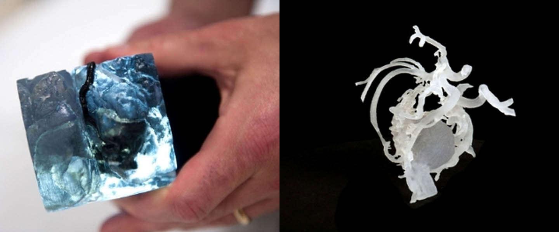 3D-printen redt levens