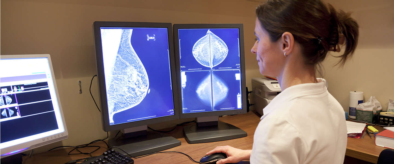 AI van Google helpt borstkanker nog nauwkeuriger te herkennen