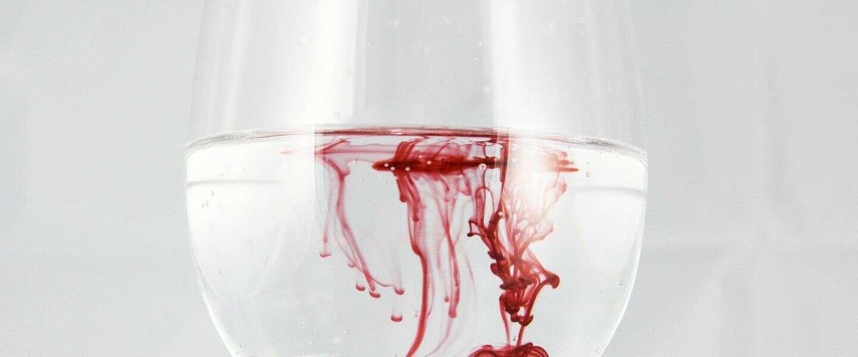 Waarom het heus niet zo slecht is dat Dexter terugkomt