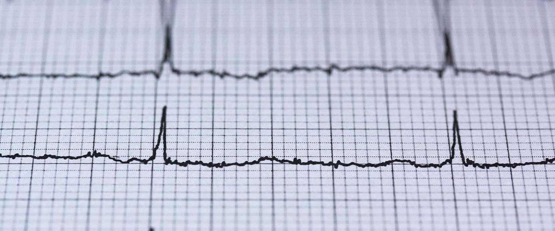 FibriCheck is de allereerste app voor hartritmestoornissen