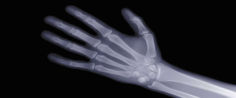 Studenten MIT ontwikkelen tool waarmee röntgenzicht heel dichtbij komt