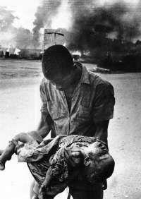 1183940248BNW-Carlisle-Umunna-Nigeria-Biafra-War-child-casualty-3