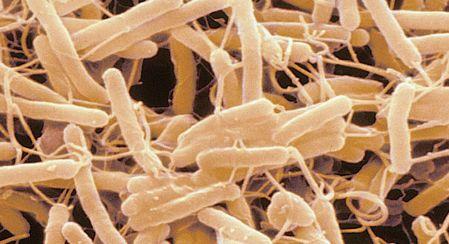 De smartphone van artsen blijkt een bacteriebron te zijn