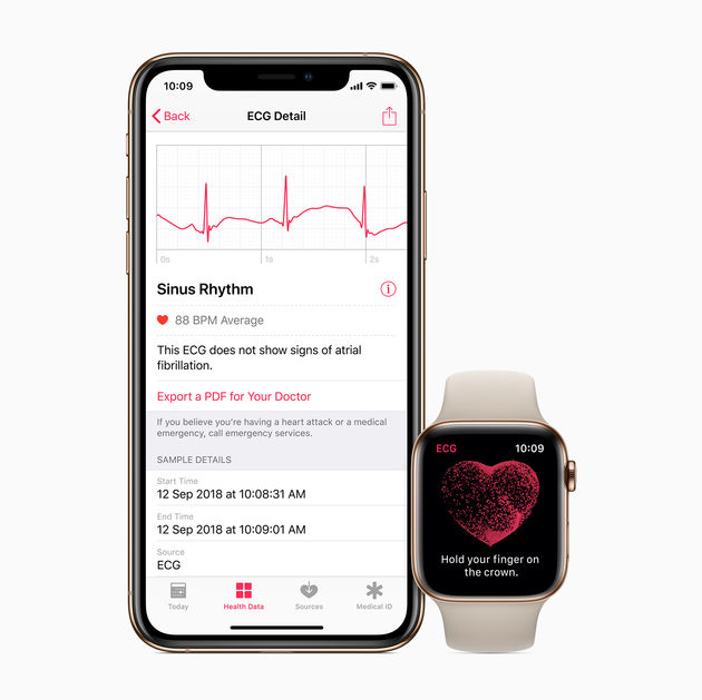 ECG-app_iPhone-Watch-