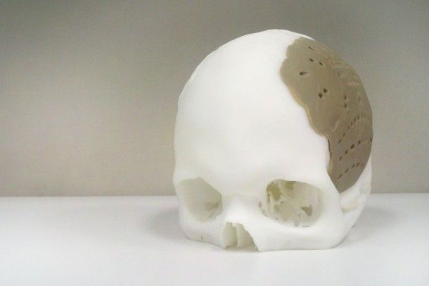 Gezichtsreconstructie met 3D printen