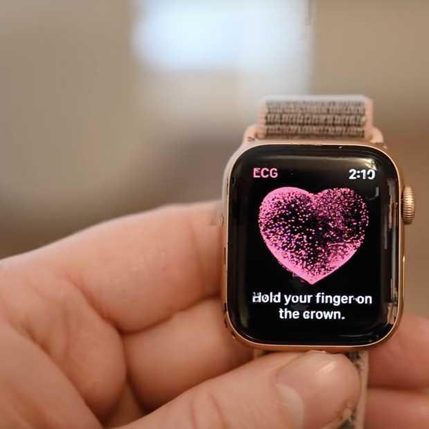 Hartritmefilmpjes maken met Apple Watch Series 4
