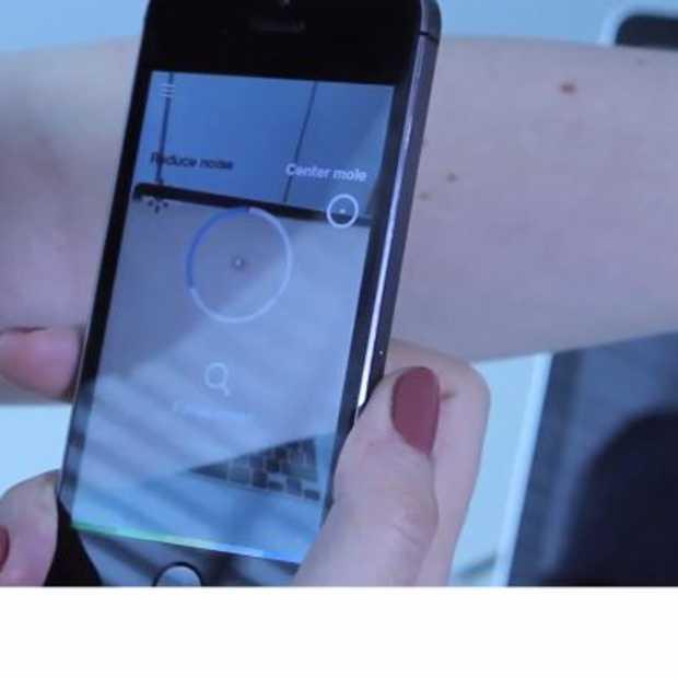 Eindhovenaren aan de slag met moedervlekken app