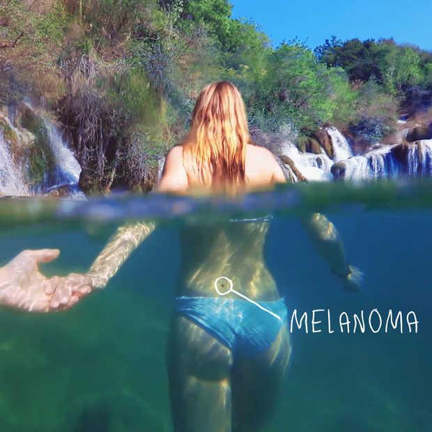 Awareness campagne voor Millennials  over melanoom